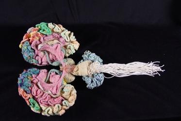 Brain Karen Norberg 1