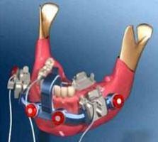 http://www.boingboing.net/images/dental.jpg