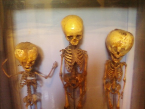 Jaunty Trio Of Malformed Doll Skeletons