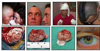http://boingboing.net/images/tumorset.jpg