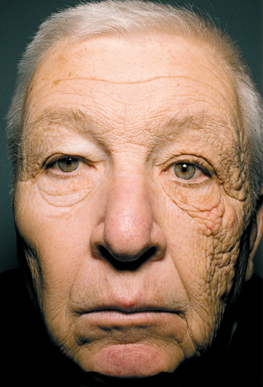 Truck Driver gets sun on one side of his face for years.