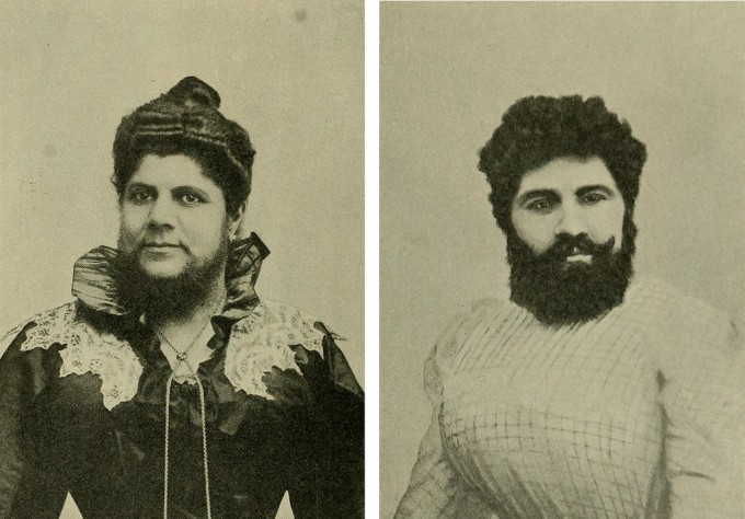 "Frau Josephine Budra and Anna Hudjos, two genderqueer persons once referred to as ""hemaphrodites"" who were featured in Hermaphroditismus beim Menschen (1908)."