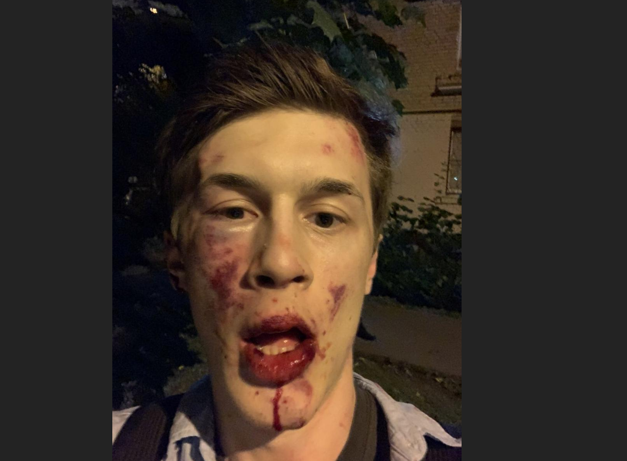 Russian opposition blogger Zhukov beaten outside home in Moscow